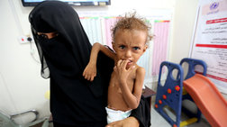 Σοκ: 85.000 παιδιά κάτω των 5 ετών πέθαναν από ασιτία στην Υεμένη
