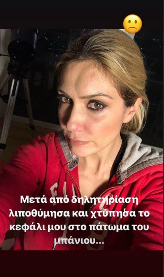 Έλενα Παπαβασιλείου: Λιποθύμησε & χτύπησε στο κεφάλι- Η φωτο με τα σημάδια