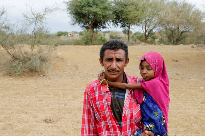Εικόνες γροθιά στο στομάχι: Ετσι πεθαίνουν τα παιδιά της Υεμένης... - εικόνα 5