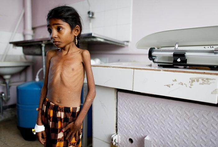 Εικόνες γροθιά στο στομάχι: Ετσι πεθαίνουν τα παιδιά της Υεμένης... - εικόνα 4