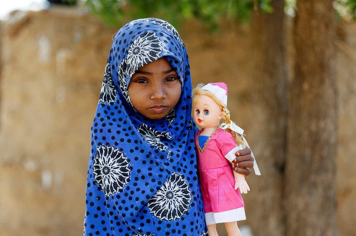 Εικόνες γροθιά στο στομάχι: Ετσι πεθαίνουν τα παιδιά της Υεμένης... - εικόνα 3