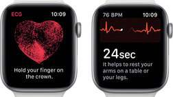 Apple Watch: Από σήμερα Ηλεκτροκαρδιογράφημα και ειδοποίηση για Μαρμαρυγή