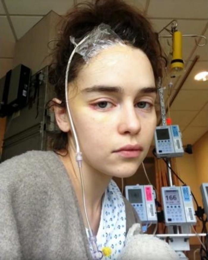 Η Εμίλια Κλαρκ δείχνει για πρώτη φορά φωτογραφίες της μέσα από το νοσκομείο