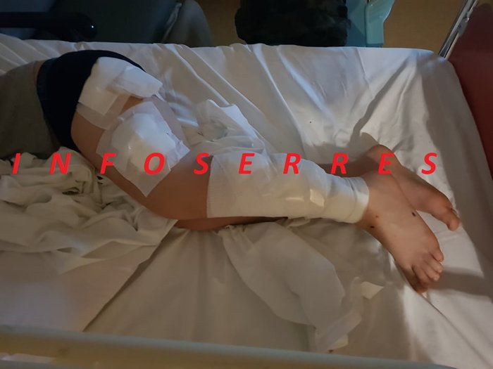 Επίθεση σκύλων σε 9χρονο στις Σέρρες: Ελεύθεροι πατέρας και γιός - εικόνα 2