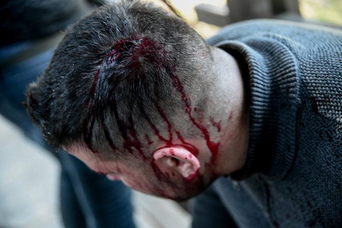 Άγρια σύγκρουση φοιτητών - ΜΑΤ στο Καβούρι: Χημικά και τραυματίες - εικόνα 5
