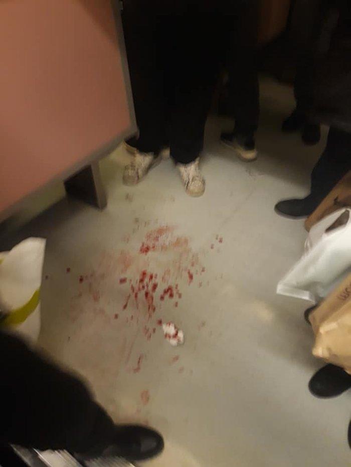 Θλίψη: Αίματα και σπασμένα γυαλιά στο μετρό του Συντάγματος - εικόνα 2