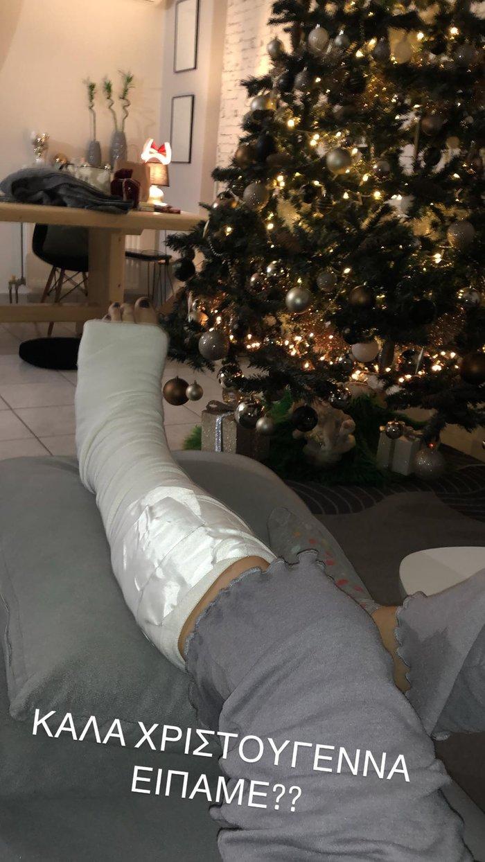 Ατύχημα για τη Μπάγια Αντωνοπούλου - Χριστούγεννα με γύψο