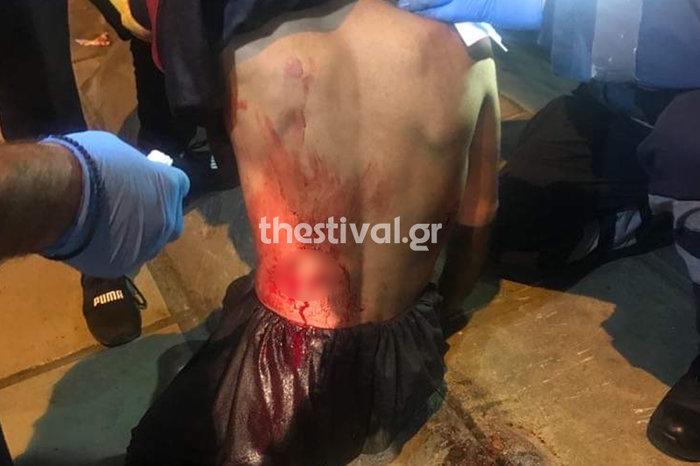 Θεσσαλονίκη: Του επιτέθηκαν με μαχαίρια και ξύλα για 50 ευρώ-Εικόνες - εικόνα 3